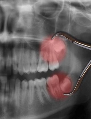 Minor Oral Surgical Procedure