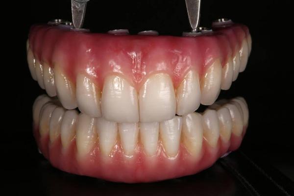 Permanent Denture Options